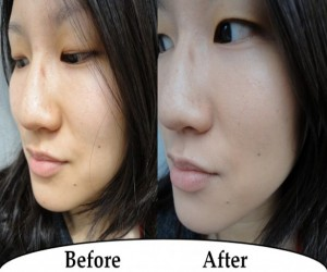 skin whitening, bleaching, skin tone, tanning, hyper-pigmentation, skin colour