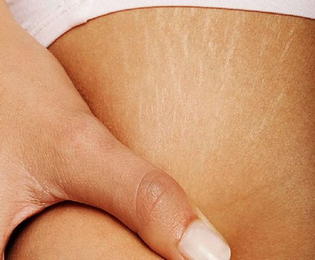 Stretch Marks – Can I get Rid Of Them?