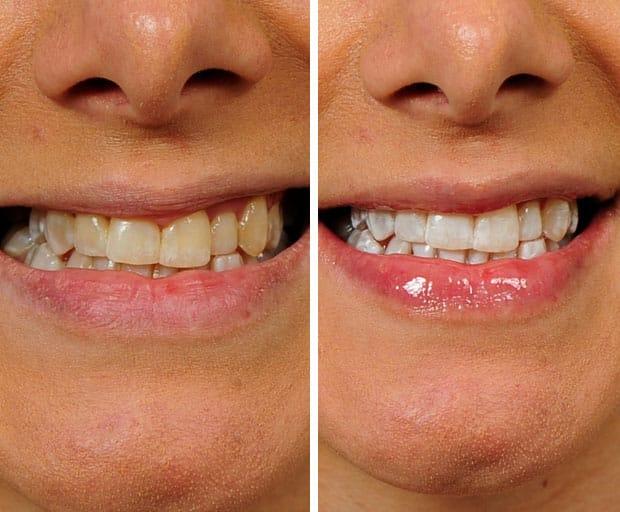 teeth whitening, at-home teeth whitening, Phillips Zoom! Teeth Whitening, dental, dental work, Quality Dental, Dr Luke Cronin