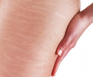 4 Easy Exercises To Reduce Stretch Marks
