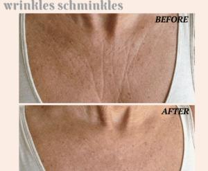 Wrinkles Schminkles Launches New Skincare Range