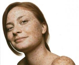Treating pigmentation