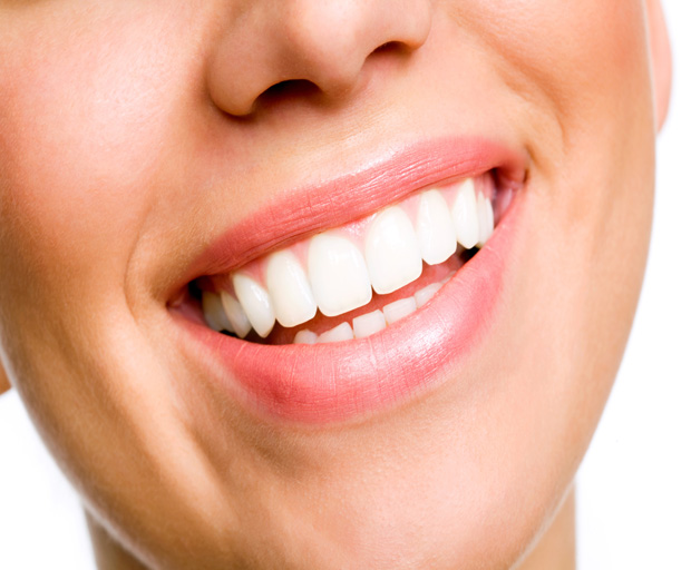 white teeth, dental work, beauty, cosmetic dentistry, teeth
