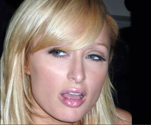 Paris Hilton, cold sore, health, illness