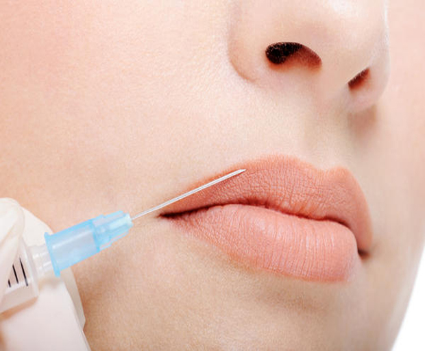 lip augmentation, fillers, injectables, beauty, lips, surgery