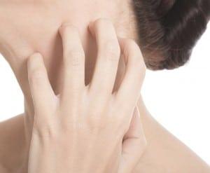 skincare, skin rashes, natural skincare, olive oil