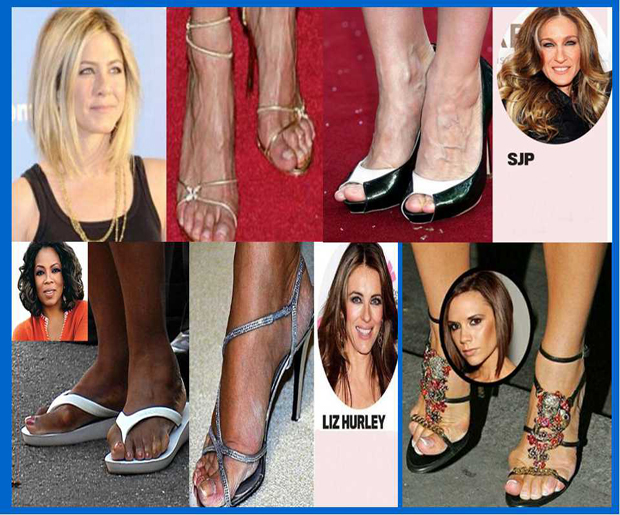 feet, celebrities, celebrity feet, bunions, dry feet, cracked feet, veiny feet, foot care