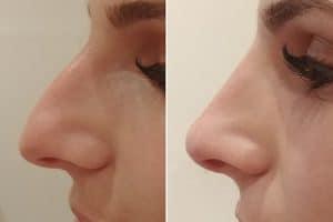 Nurse-cosmetic-nose